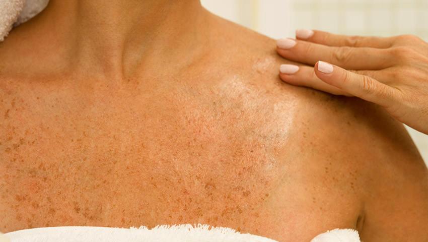 La sosa alimenticia para el blanqueamiento de la piel