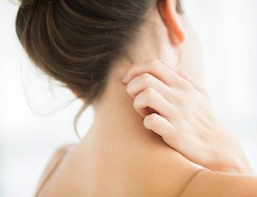 El picor por Dermatitis Atópica