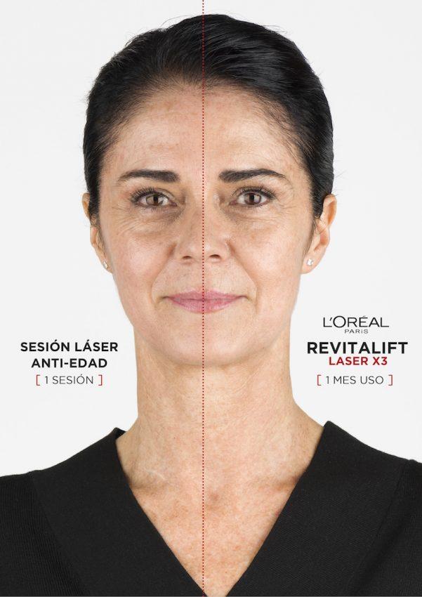 prueba Revitalift Laser X3