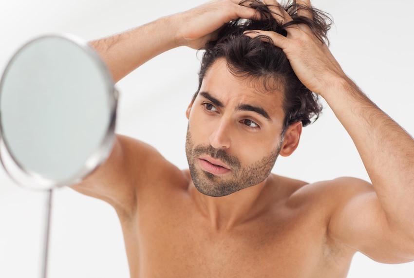 caída cabello hombre