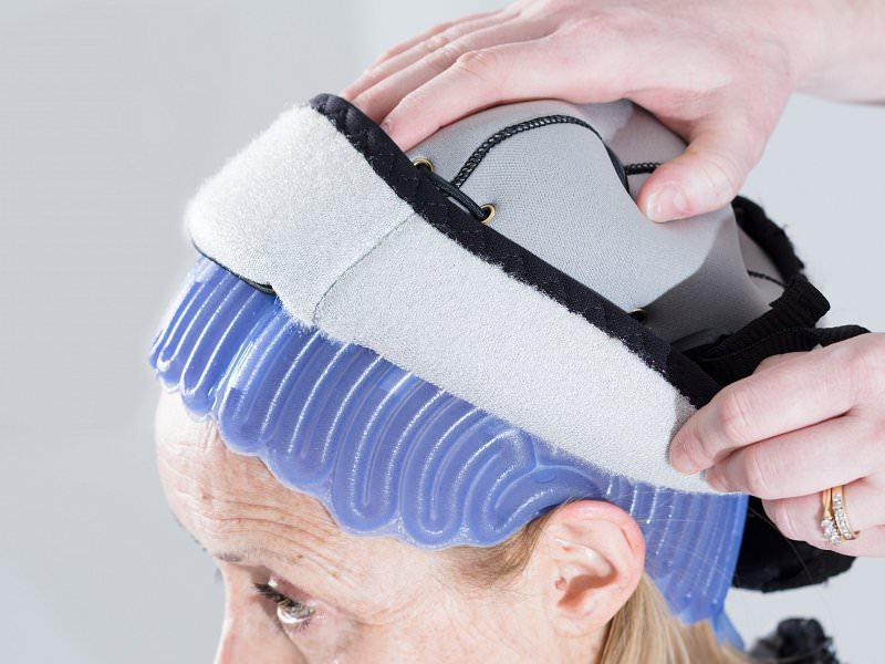 oncobel caida de cabello quimio
