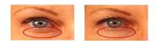 arrugas contorno de ojos
